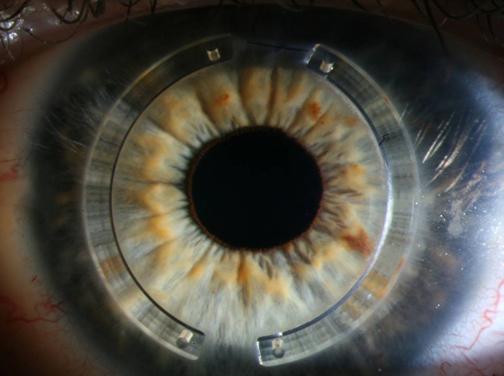 bdb2042fb465a Após a cirurgia de Anel de Ferrara quanto tempo leva para recuperar a visão